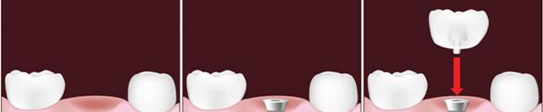 Dental Implants in Vancouver
