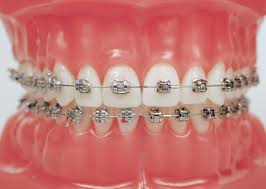 Key Questions to Ask Before Getting Braces