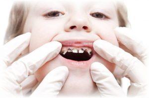 Restore Broken or Rotten Teeth