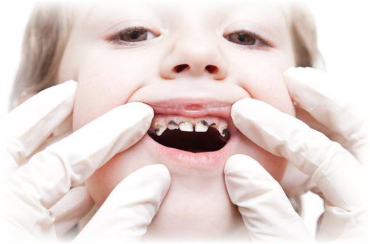Composite Fillings To Restore Broken Or Rotten Teeth