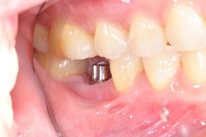 Basis of Tooth Loss that Prompt People to get Dental Implants