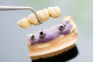 Dental Implants in the Winter Season