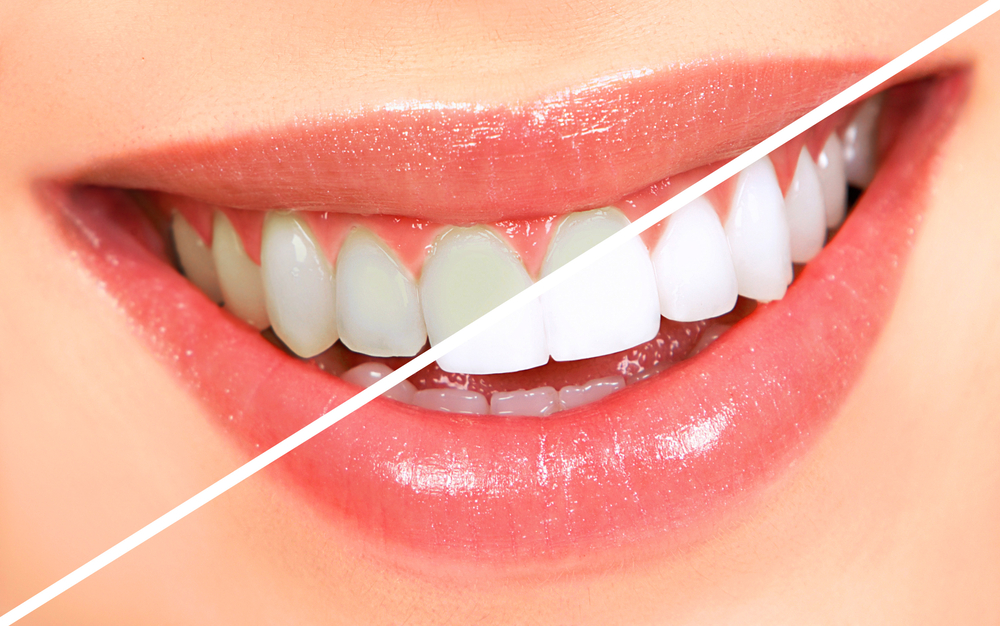Cosmetic Dentistry Candidate
