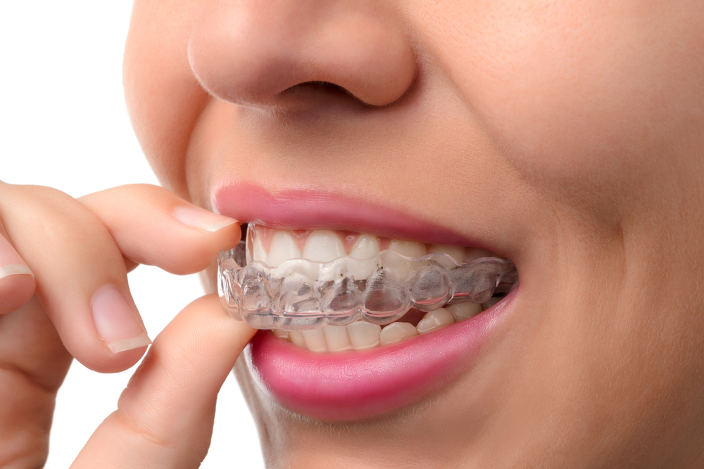 Can Cosmetic Dentistry Fix Crooked Teeth