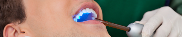 Drill-Less Fillings